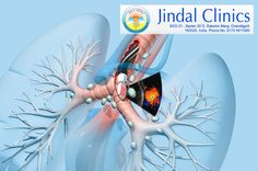 #JindalClinics is about giving medical services in the field of #Pulmonary Medicine at per with the best in the word http://jindalchest.com