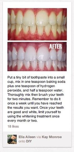 teeth whitening.: teeth whitening.