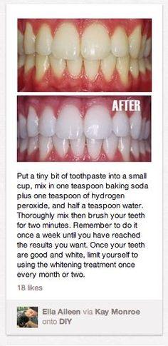 teeth whitening.:
