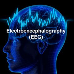 Electroencephalography (EEG) is the measure of the electrical activity that your brain generates.  Brainwaves can change for a number of reasons including when a person gets drowsy, falls asleep, is resting, in deep thought, or for pathologic reasons including after a #concussion. | Cerora