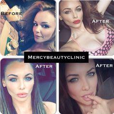 Lip filler before and after Mercy Beauty Clinic #LipFiller #BeforeAfter #BigLips #LipAugmentation #GlamourLips #FakeLips #BarbieSaurus http://www.positivethesaurus.com/2015/02/positive-words-to-describe-lips.html