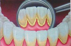 What causes teeth decay dental insurance plans,gum disease treatment kids dentist near me,smile dental clinic no bad breath. Oral Health, Health And Wellness, Teeth Health, Health Remedies, Home Remedies, Natural Remedies, Teeth Care, Bad Breath, Oral Hygiene