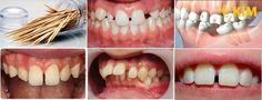 """Răng cửa mọc thưa – nguyên nhân và cách """"cứu chữa"""" nhanh chóng nhất"""