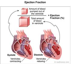 Do You Know Your Heart's Ejection Fraction?