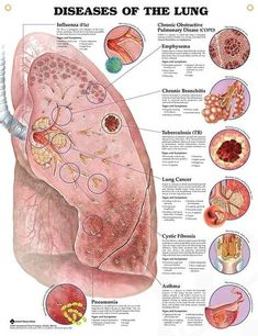 Diseases of the Lung anatomy poster shows prominent diseased lung with 8 close-up illustrations of specific diseases. Diseases of the Lung anatomy poster shows prominent diseased lung with 8 close-up illustrations of specific diseases. Medical Student, Medical Coding, Medical Assistant, Medical Science, Nursing Students, Respiratory Therapy, Respiratory System, Nclex, Lung Anatomy