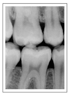 Digital x-rays, or radiographs, are one of the latest cutting edge technologies. With these, traditional x-ray film is replaced with digital sensors, allowing for enhancement of images to make sure nothing is overlooked. Also, it uses less radiation than traditional methods! Contact us today to learn more at 781-237-9071 or smile@wellesleydentalgroup.com.