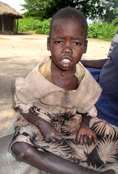A girl in Gulu District, northern Uganda, who is suffering from nodding disease.