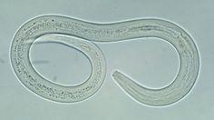 Hookworm Infections