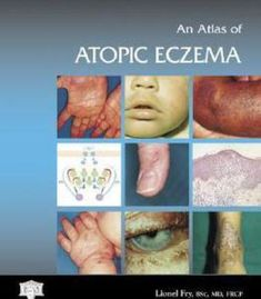 An Atlas Of Atopic Eczema (Encyclopedia Of Visual Medicine Series) By Lionel Fry PDF