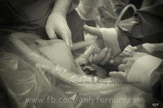 Baby grabbing Doctors finger during C-Section.