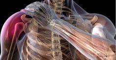 """A tendinite do ombro é um problema que atinge muitas pessoas.Ela causa dor, desconforto e rigidez na articulação.A articulação do ombro é apoiado por um grupo de músculos chamado """"manguito rotador"""" e o """"tendão bicipital"""" ."""
