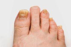 Mata el hongo de las uñas rápidamente con vinagre de manzana y bicarbonato de sodio | ConSalud.info