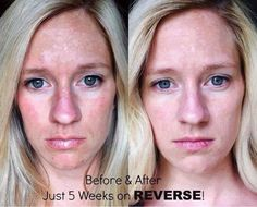 Love my R+F REVERSE regimen! It reverses age spots, melasma, sun damage & dullness...gives you even, bright skin back...her results in 5 weeks are awesome!  https://michelleskelly.myrandf.biz/Shop/Reverse