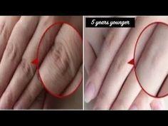 Clear Skin Face, Face Skin Care, Beauty Tips For Glowing Skin, Beauty Skin, Face Wrinkles, Lighten Skin, Hand Care, Skin Care Remedies, Healthy Skin Care