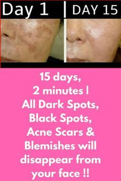 15 days, 2 minutes | All Dark Spots, Black Spots, Acne Scars & Blemishes will disappear from your face !! This is a very simple natural treatment that will take only 2 minutes for preparation and in just 15 days will give you a new look that is flawless,