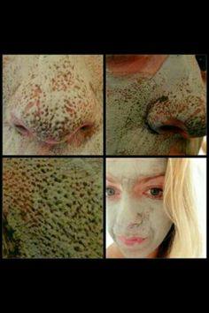 Mud mask 🍃🍃 Amazing results You can see it working pulling out dirt from the pores and eliminating black heads👌 Beauty Box, My Beauty, Health And Beauty, Marine Mud Mask, Glacial Marine Mud, Skin Head, Clay Masks, Anti Aging Skin Care, Teeth Whitening
