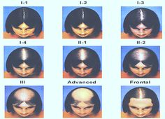 According to medical servery 45% of women maintain a full head of hair in their entire life time. But in few women also, the hair fall starts due to few factors such as androgenetic alopecia or female pattern hair loss, hereditary factors from both side and hormonal issues.  To know more visit here: http://olivacosmeticsurgery.com/hair-transplantation/hair-loss-in-women/