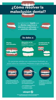 ¿Cómo resolver la maloclusión dental? (Infografía)