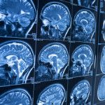 Stroke: 4 Things You Need to Know Understand the risks and work with your doctor CLEVELAND CLINIC