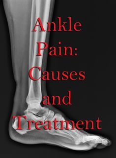 Quick Reference of Myofascial Causes of Ankle Pain