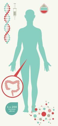 5 fundamental facts about Crohn's disease, good read. Crohns Awareness, Crohns Recipes, Metabolic Syndrome, Ulcerative Colitis, Pcos, Autoimmune, Fibromyalgia, Crohn's Disease, Nursing