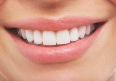 Dientes blancos en 5 minutos con este remedio casero | Cuidar de tu belleza es facilisimo.com