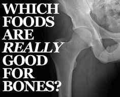 Foods that cause, and foods that prevent degenerative bone diseases like osteoporosis and arthritis.     No surprise the bad stuff was my standard daily diet until the day I literally couldn't walk from the bed to the bathroom. The good list has been major part of my recovery. -suzi.