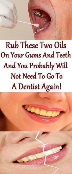 Top Oral Health Advice To Keep Your Teeth Healthy. The smile on your face is what people first notice about you, so caring for your teeth is very important. Unluckily, picking the best dental care tips migh Teeth Health, Dental Health, Oral Health, Dental Care, Healthy Teeth, Natural Health Tips, Natural Health Remedies, Natural Cures, Natural Treatments