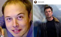 Elon Musk esthetic akımı kadar saç ekimi akımına da kapılıp değişen erkek ünlülerden. | Kadınca Fikir - Kadınca Fikir