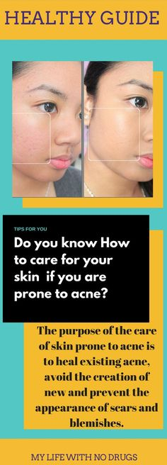 How to care for your #skin  if you are prone to #acne #skincare