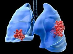 Immunotherapy Agent May Have Early Survival Risk in Lung Cancer !!