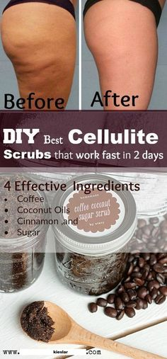 DIY Best Cellulite Scrubs That Work Fast In 2 Days! With most Powerful 7 Homemad… DIY Best Cellulite Scrubs That Work Fast In 2 Days! With most Powerful 7 Homemade Remedies to Remove Cellulite Naturally Effective Ingredients Causes Of Cellulite, Cellulite Exercises, Cellulite Remedies, Reduce Cellulite, Acne Remedies, Anti Cellulite, Natural Remedies, Health Remedies, Herbal Remedies