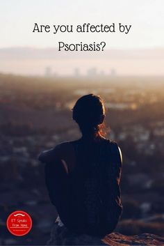 Are you affected by Psoriasis?