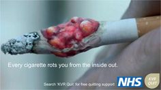 Cancerous tumor grows out of cigarette in new anti smoking campaign. million pounds advertising campaign warning smokers that just 15 cigarettes can lead to a cancerous tumor. Help Quit Smoking, Smoking Kills, Anti Smoking, Giving Up Smoking, Smoking Campaigns, High Antioxidant Foods, Stop Cigarette, Stop Smoke, Lung Cancer