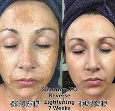 Fall in love with your skin! Get rid of stubborn dark spots and patches with Reverse Lightening. Fix uneven skin tone and make your skin glow! Rodan + Fields skincare is clinically proven to deliver results. Gain the confidence to leave home makeup-free. #beauty #skincare #rodanandfields #skincareproducts