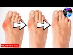 Voici 5 remèdes pour traiter les oignons et les articulations enflées en 7 jours ! - YouTube