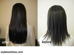 Homemade Treatment for Hair Growth with Nicotinic Acid