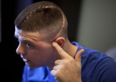 (6 of 7) Marine Cpl. Burness Britt points to the scar on his head in his room in the Hunter Holmes Medical Center in Richmond, Virginia, on December 13, 2011. (AP Photo/Anja Niedringhaus)