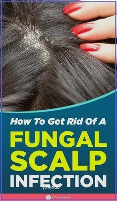 Oil For Hair Loss, Stop Hair Loss, Prevent Hair Loss, Hair Loss Shampoo, Mild Shampoo, Organic Shampoo, Home Remedies For Hair, Hair Loss Remedies, Remedies For Dry Scalp