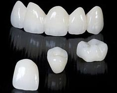 Chinese researchers make breakthrough in SLA 3D printing, soon be able to 3D print porcelain teeth in minutes