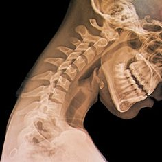 Cervical spine. 'Whiplash related disorders', are a typical cause of neck pain. Osteopathy can help diagnose and treat the problem.