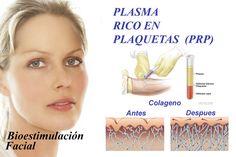 El plasma rico en plaquetas