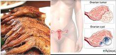 Todas las mujeres deben saber porqué no deben comerse esta parte del pollo y los riesgos para su salud.
