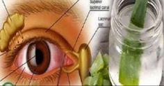 ¡Tienes que leer esta receta antes de que los farmacéuticos la borren! ¡La cura de la visión es definitiva! ¡Toma esto antes de dormir!