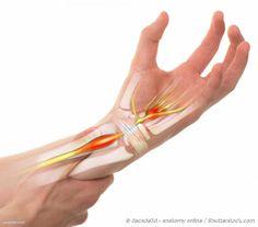 Sindrome del Tunnel Carpale - Trattare il dolore con l'olio di lino