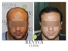 Hair transplant clinic in bangalore hair weaving pinterest hair transplant clinic in bangalore hair weaving pinterest natural of and hair pmusecretfo Image collections