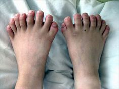 On 22nd March, 2010, A chinese boy From Shenyang, capital of northeast China's Liaoning province, showed his weird fingers and toes. He has a total of 31 fingers and toes, 7 fingers in left hand, 8 in right hand and 8 toes in each foot. He has broken the earlier record of 25 fingers and toes. He is currently in Shenjing hospital and ready for an operation.