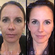 These products deliver undeniable RESULTS!!!!!  If you're ready to make a change and start loving your skin, message me TODAY!!!!  #lifechangingskincare