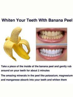 8 Easy DIY At Home Tips On How To Make Your Teeth Whiter | Gurl.com