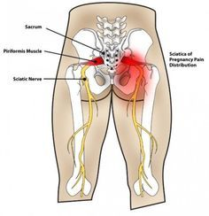 Sciatica and piriformis syndrome create intense pain that can i will explain the importance of the piriformis muscle common places of trigger points publicscrutiny Images